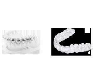 365 braces
